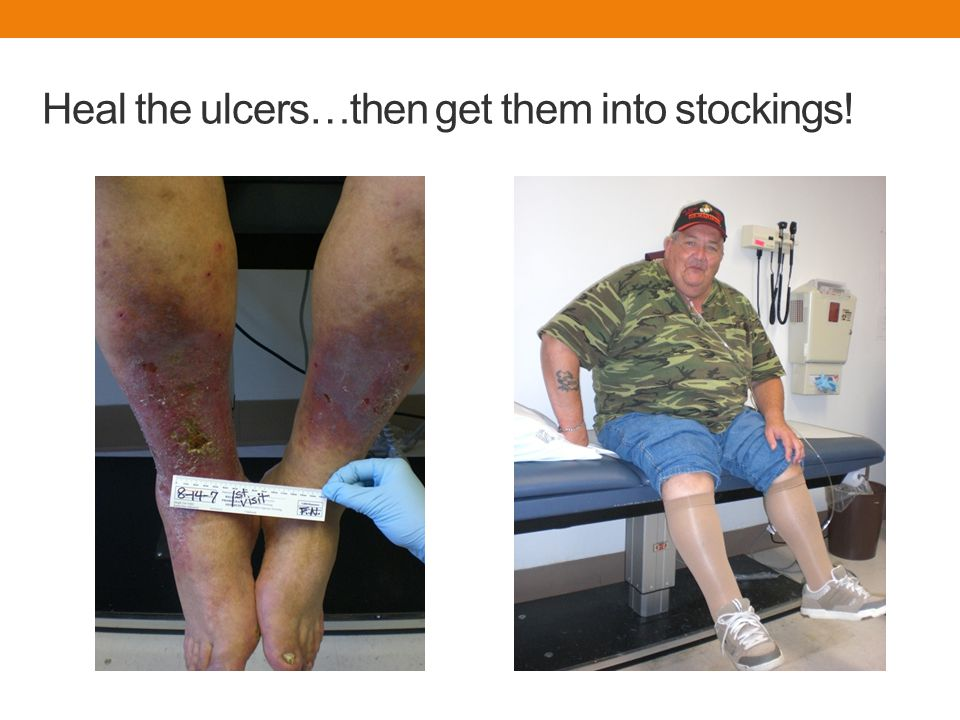 Heal the ulcers…then get them into stockings!