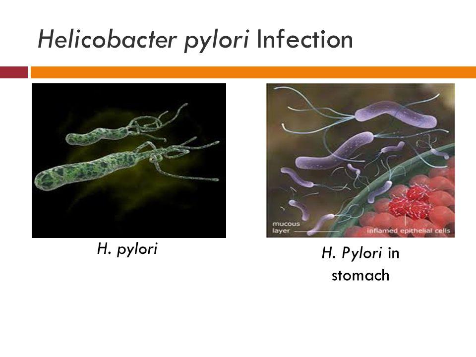 Helicobacter pylori Infection H. pylori H. Pylori in stomach