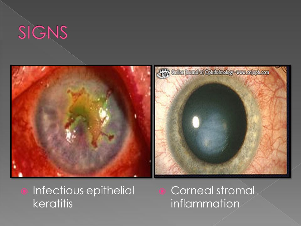  Corneal stromal inflammation  Infectious epithelial keratitis