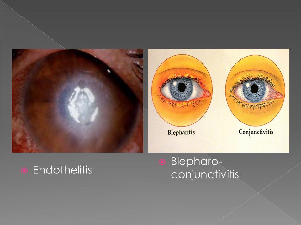  Endothelitis  Blepharo- conjunctivitis