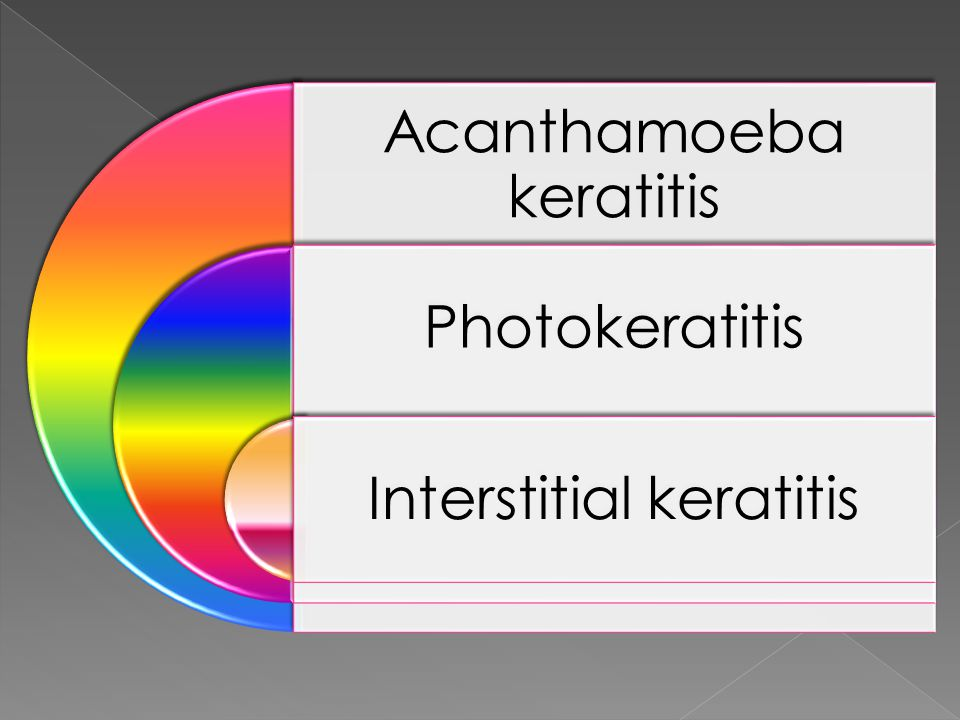 Acanthamoeba keratitis Photokeratitis Interstitial keratitis
