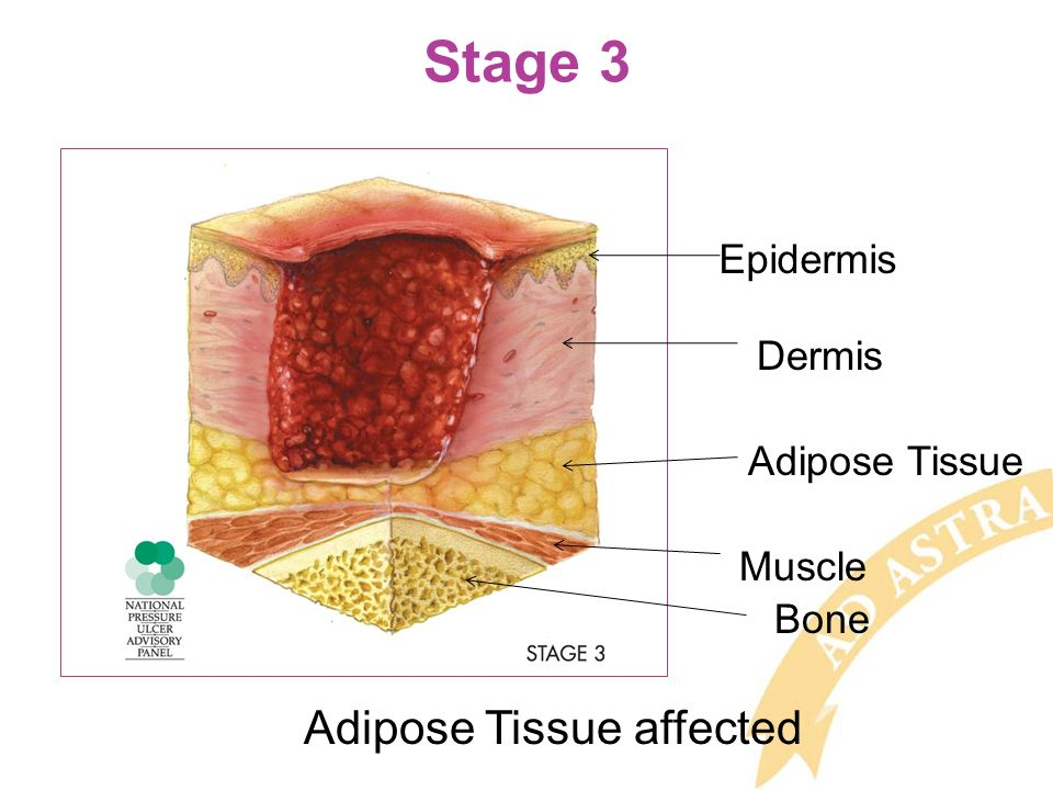 Stage 3 Epidermis Dermis Adipose Tissue Muscle Bone Adipose Tissue affected