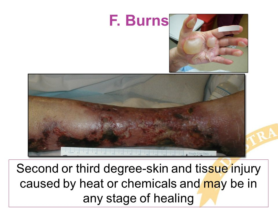F. Burns Second or third degree-skin and tissue injury caused by heat or chemicals and may be in any stage of healing