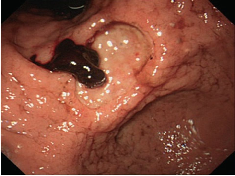 Rol of EGD in giant ulcer 1.