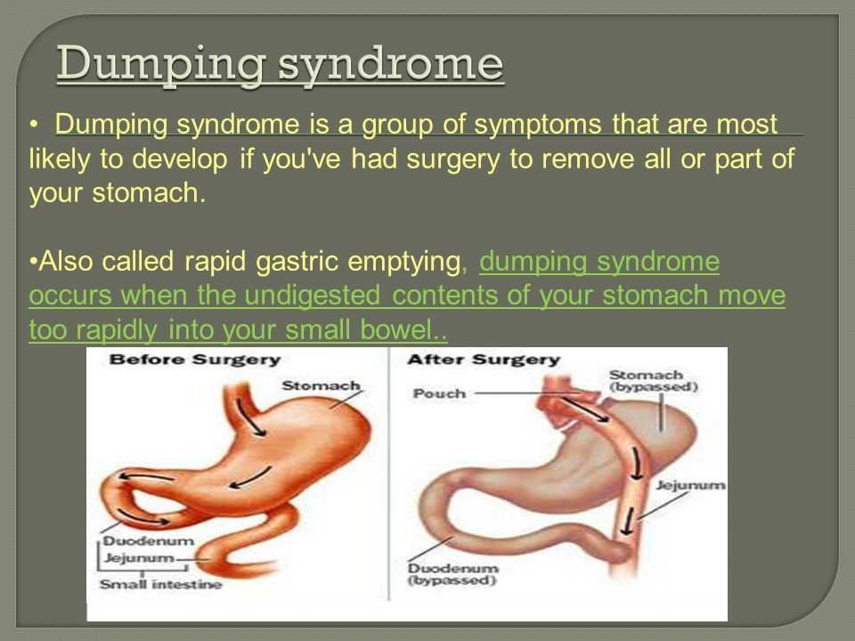 Dumping syndrome is a group of symptoms that are most likely to develop if you've had surgery to remove all or part of your stomach. Also called rapid