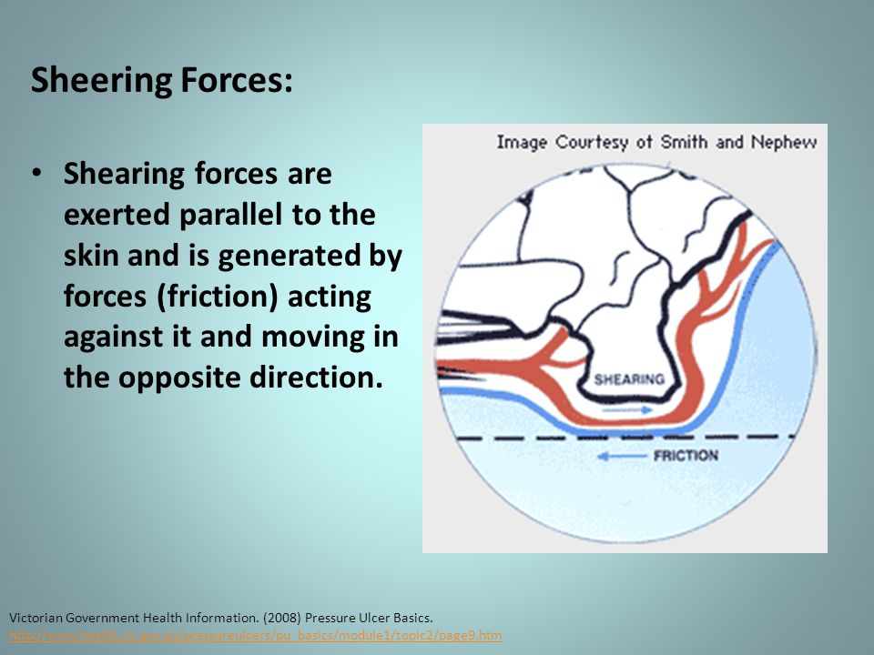Sheering Forces: Shearing forces are exerted parallel to the skin and is generated by forces (friction) acting against it and moving in the opposite direction.