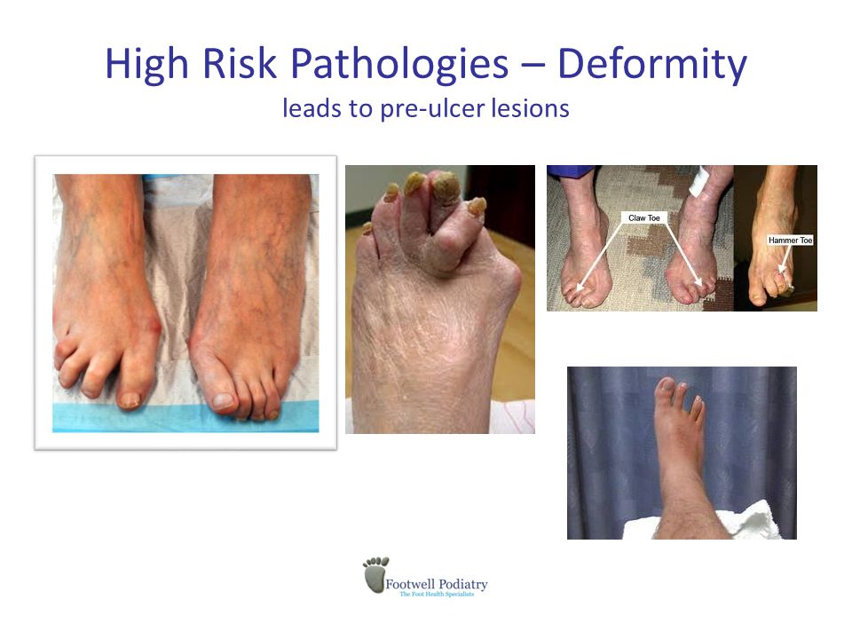 High Risk Pathologies – Deformity leads to pre-ulcer lesions