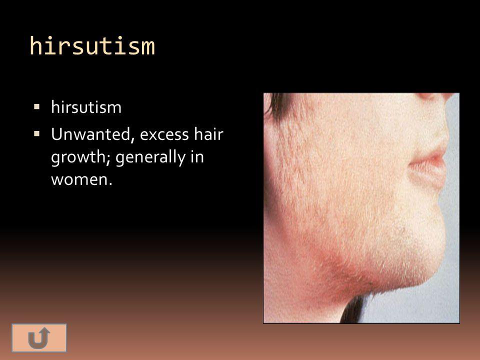 hirsutism  hirsutism  Unwanted, excess hair growth; generally in women.