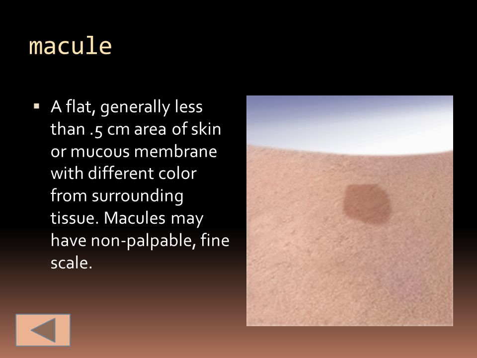 macule  A flat, generally less than.5 cm area of skin or mucous membrane with different color from surrounding tissue. Macules may have non-palpable,