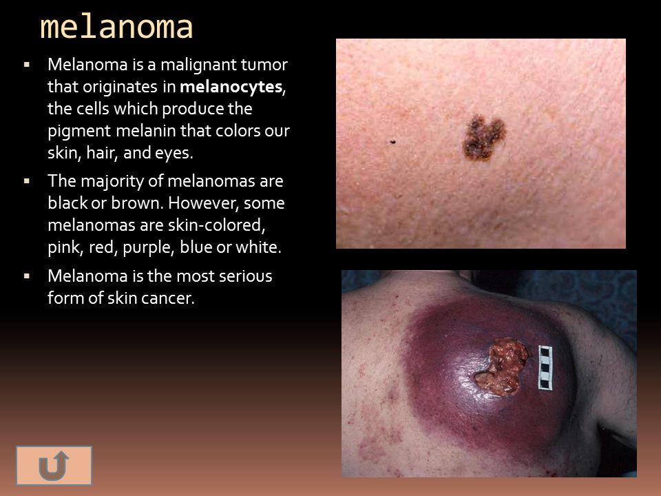 melanoma  Melanoma is a malignant tumor that originates in melanocytes, the cells which produce the pigment melanin that colors our skin, hair, and e