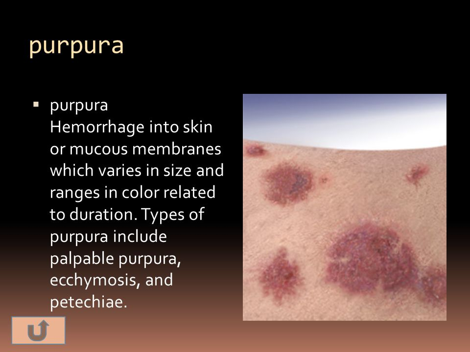 purpura  purpura Hemorrhage into skin or mucous membranes which varies in size and ranges in color related to duration. Types of purpura include palp