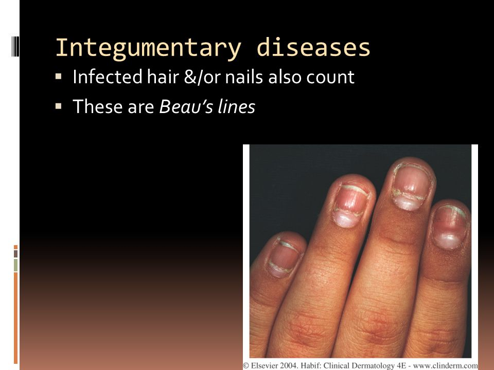Integumentary diseases  Infected hair &/or nails also count  These are Beau's lines