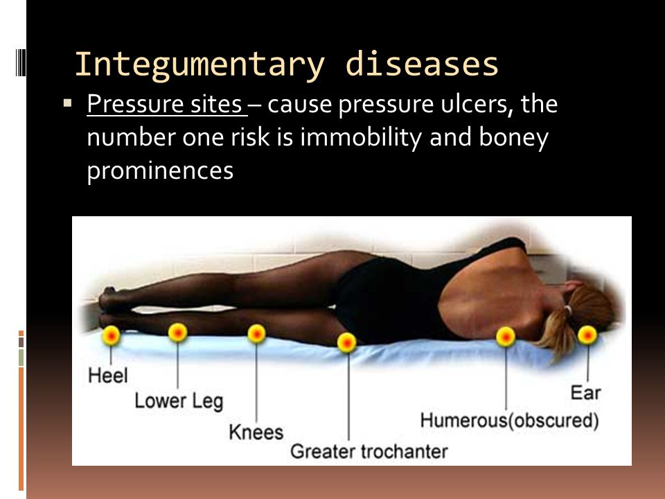 Integumentary diseases  Pressure sites – cause pressure ulcers, the number one risk is immobility and boney prominences