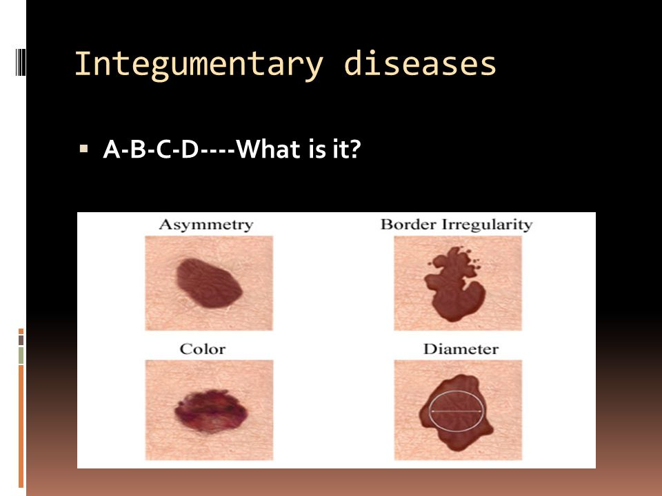 Integumentary diseases  A-B-C-D----What is it?
