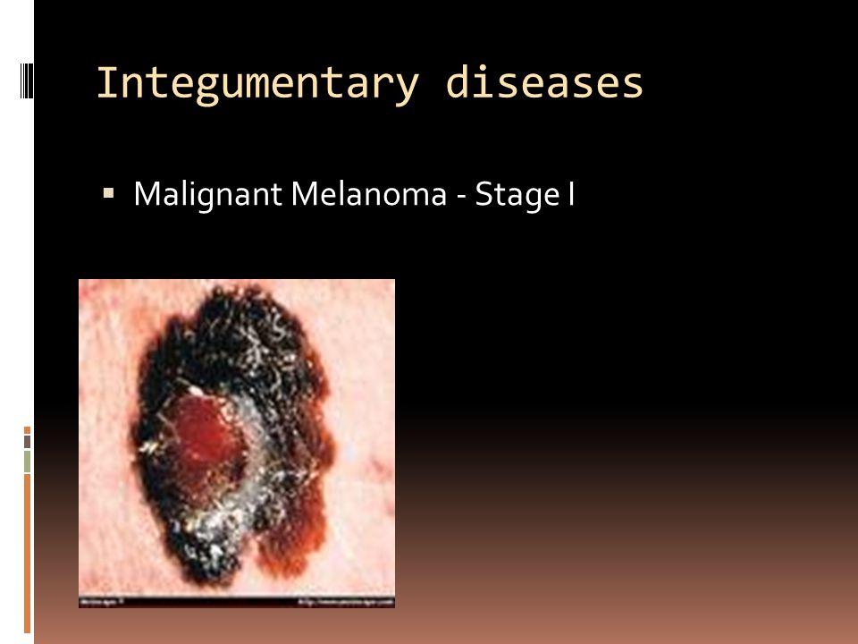 Integumentary diseases  Malignant Melanoma - Stage I