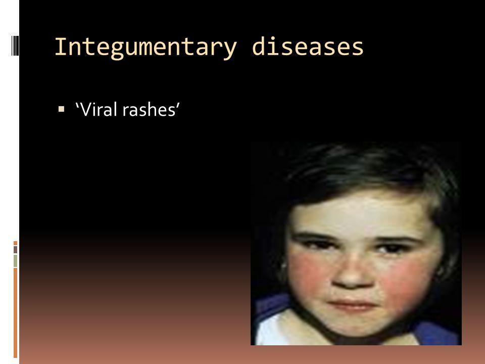 Integumentary diseases  'Viral rashes'