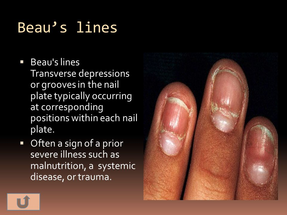 Beau's lines  Beau's lines Transverse depressions or grooves in the nail plate typically occurring at corresponding positions within each nail plate.