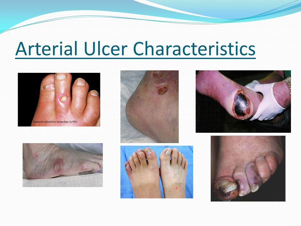 Arterial Ulcer Characteristics