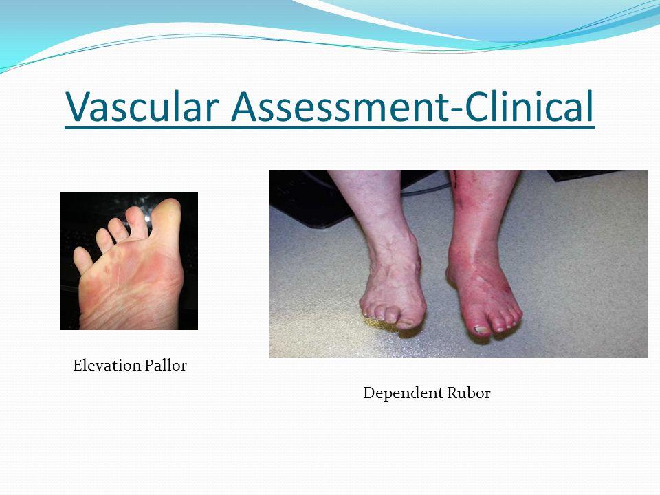 Vascular Assessment-Clinical Elevation Pallor Dependent Rubor
