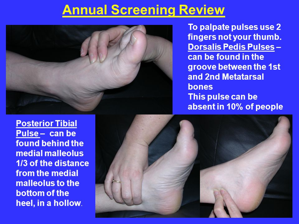 To palpate pulses use 2 fingers not your thumb. Dorsalis Pedis Pulses – can be found in the groove between the 1st and 2nd Metatarsal bones This pulse