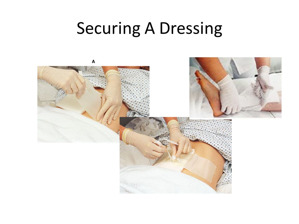 Securing A Dressing