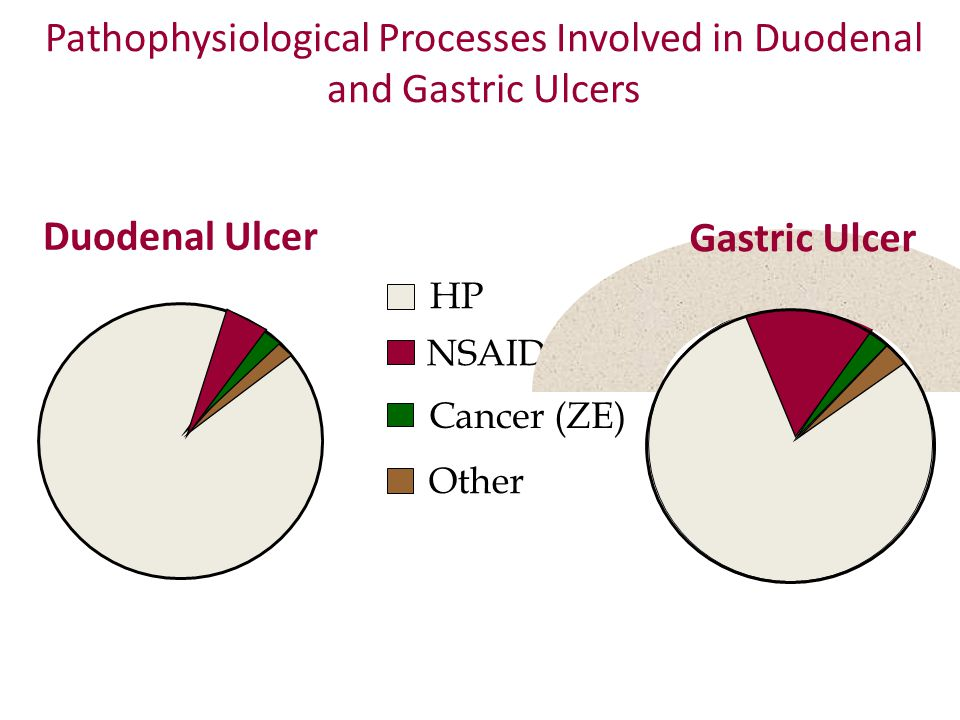 Pathophysiological Processes Involved in Duodenal and Gastric Ulcers HP NSAID Cancer (ZE) Other Duodenal Ulcer Gastric Ulcer