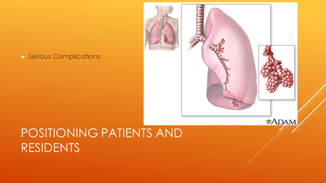 POSITIONING PATIENTS AND RESIDENTS  Serious Complications