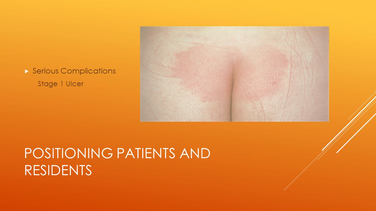 POSITIONING PATIENTS AND RESIDENTS  Serious Complications Stage 2 Ulcer