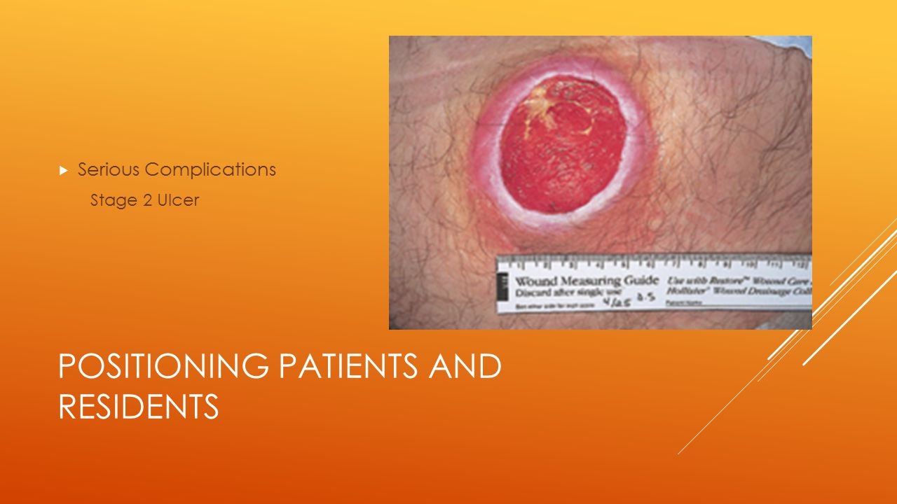 POSITIONING PATIENTS AND RESIDENTS  Serious Complications Stage 2 Ulcer
