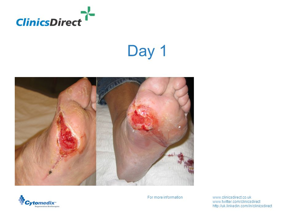 For more informationwww.clinicsdirect.co.uk www.twitter.com/clinicsdirect http://uk.linkedin.com/in/clinicsdirect Day 1 Wound area 2.5 x 1.5 cm Ist Pgel