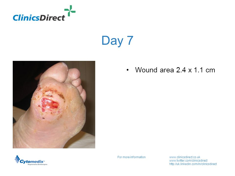 For more informationwww.clinicsdirect.co.uk www.twitter.com/clinicsdirect http://uk.linkedin.com/in/clinicsdirect Day 21 Wound area 2.1 x 0.7 cm