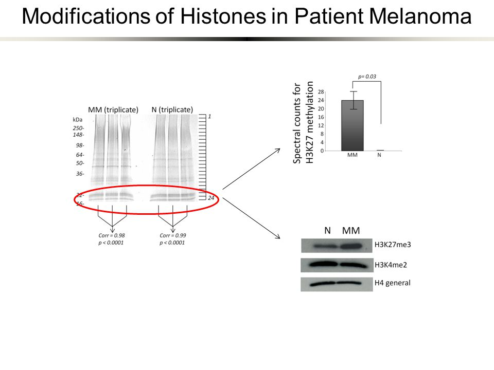 Modifications of Histones in Patient Melanoma