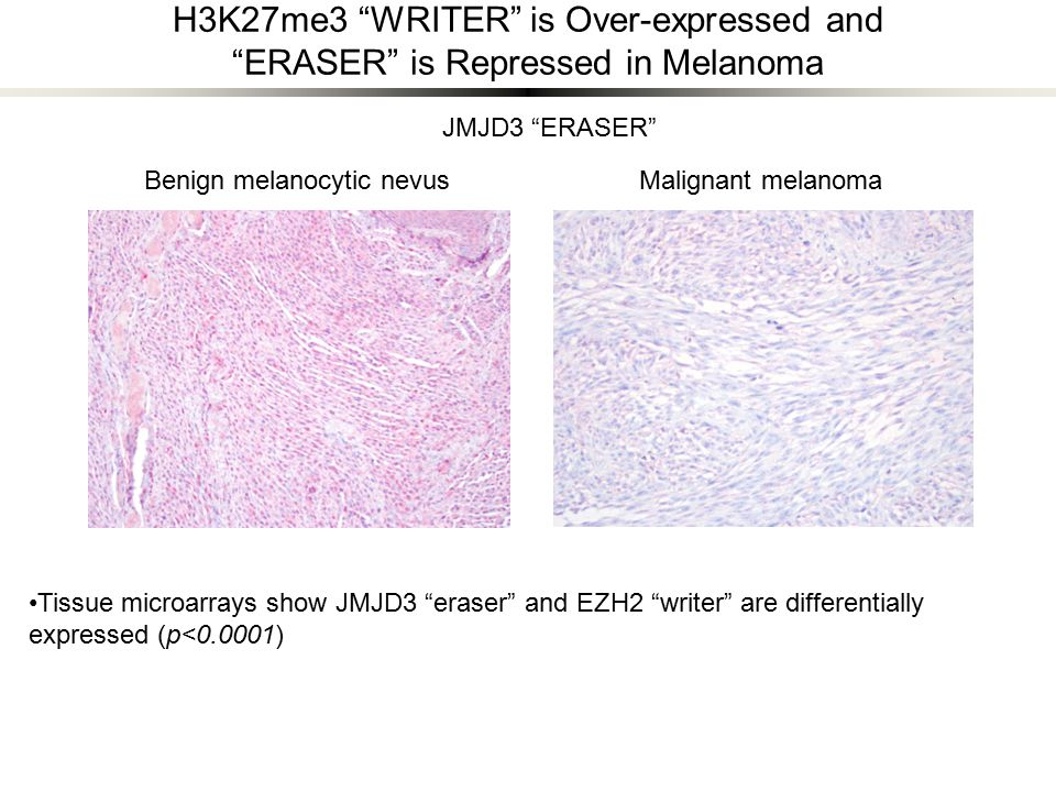 H3K27me3 WRITER is Over-expressed and ERASER is Repressed in Melanoma Benign melanocytic nevusMalignant melanoma JMJD3 ERASER Tissue microarrays show JMJD3 eraser and EZH2 writer are differentially expressed (p<0.0001)