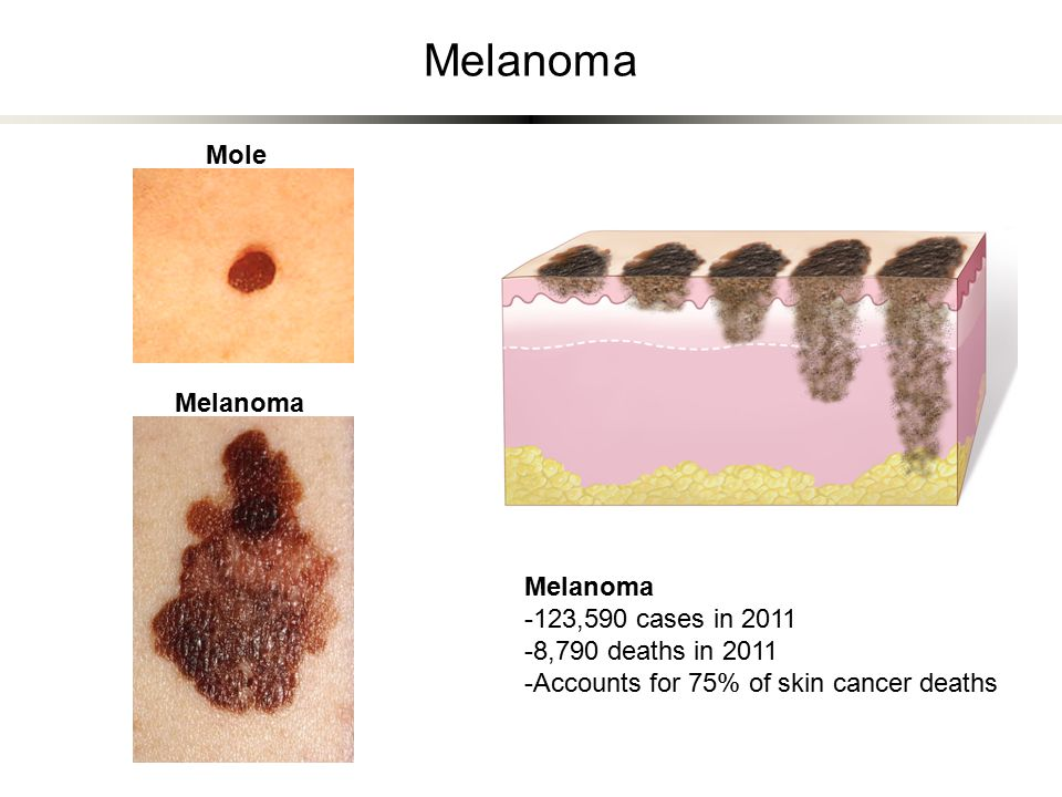 Melanoma -123,590 cases in 2011 -8,790 deaths in 2011 -Accounts for 75% of skin cancer deaths Melanoma Mole