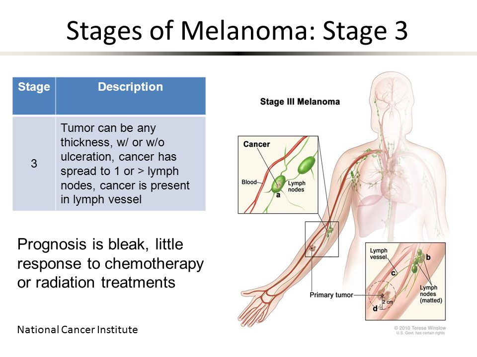 StageDescription 3 Tumor can be any thickness, w/ or w/o ulceration, cancer has spread to 1 or > lymph nodes, cancer is present in lymph vessel National Cancer Institute Prognosis is bleak, little response to chemotherapy or radiation treatments Stages of Melanoma: Stage 3