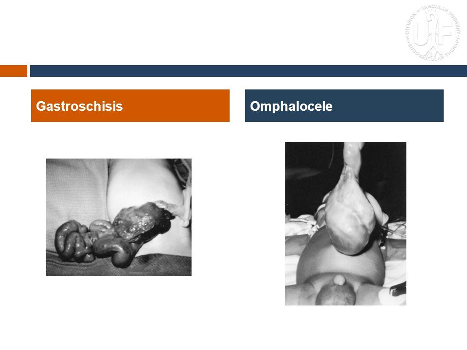 GastroschisisOmphalocele
