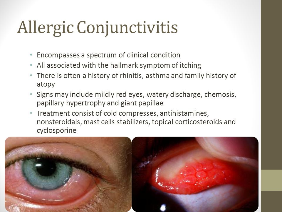 Allergic Conjunctivitis Encompasses a spectrum of clinical condition All associated with the hallmark symptom of itching There is often a history of rhinitis, asthma and family history of atopy Signs may include mildly red eyes, watery discharge, chemosis, papillary hypertrophy and giant papillae Treatment consist of cold compresses, antihistamines, nonsteroidals, mast cells stabilizers, topical corticosteroids and cyclosporine