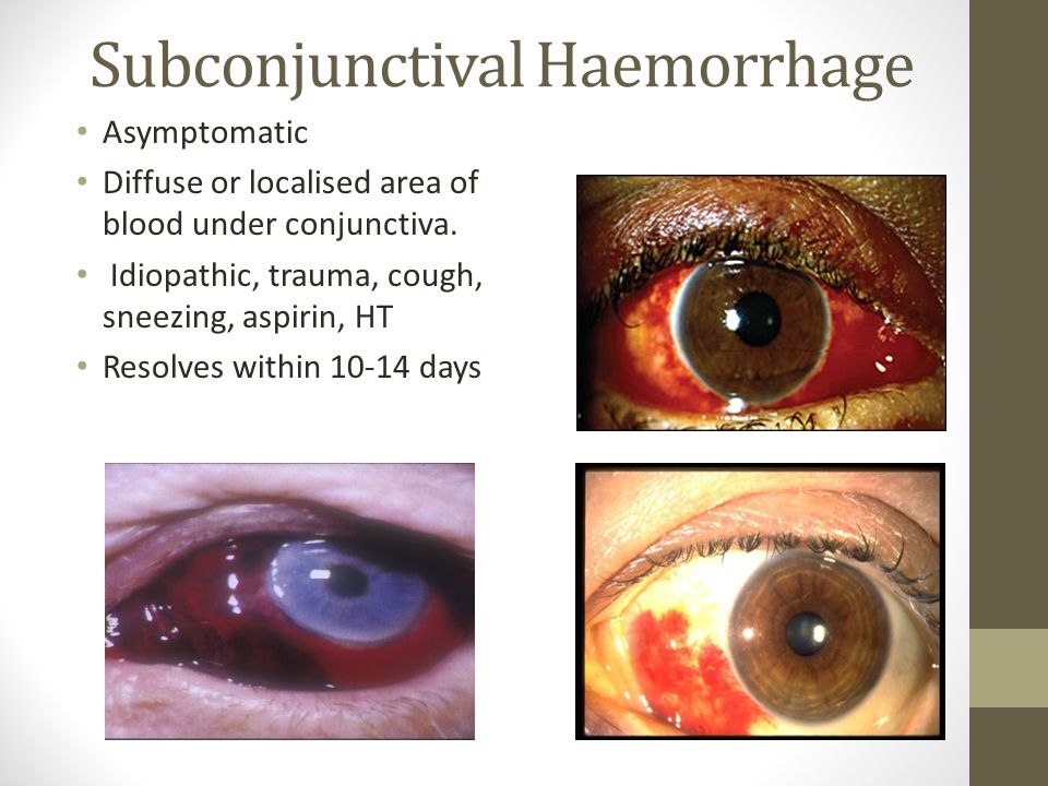Subconjunctival Haemorrhage Asymptomatic Diffuse or localised area of blood under conjunctiva. Idiopathic, trauma, cough, sneezing, aspirin, HT Resolv
