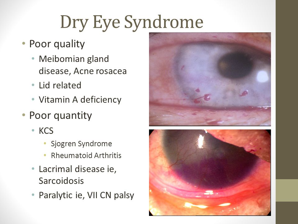 Dry Eye Syndrome Poor quality Meibomian gland disease, Acne rosacea Lid related Vitamin A deficiency Poor quantity KCS Sjogren Syndrome Rheumatoid Arthritis Lacrimal disease ie, Sarcoidosis Paralytic ie, VII CN palsy