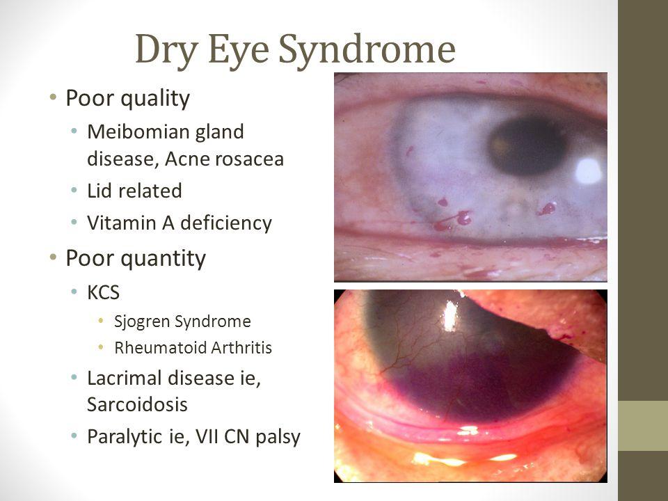 Dry Eye Syndrome Poor quality Meibomian gland disease, Acne rosacea Lid related Vitamin A deficiency Poor quantity KCS Sjogren Syndrome Rheumatoid Art
