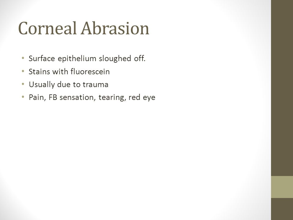 Corneal Abrasion Surface epithelium sloughed off.