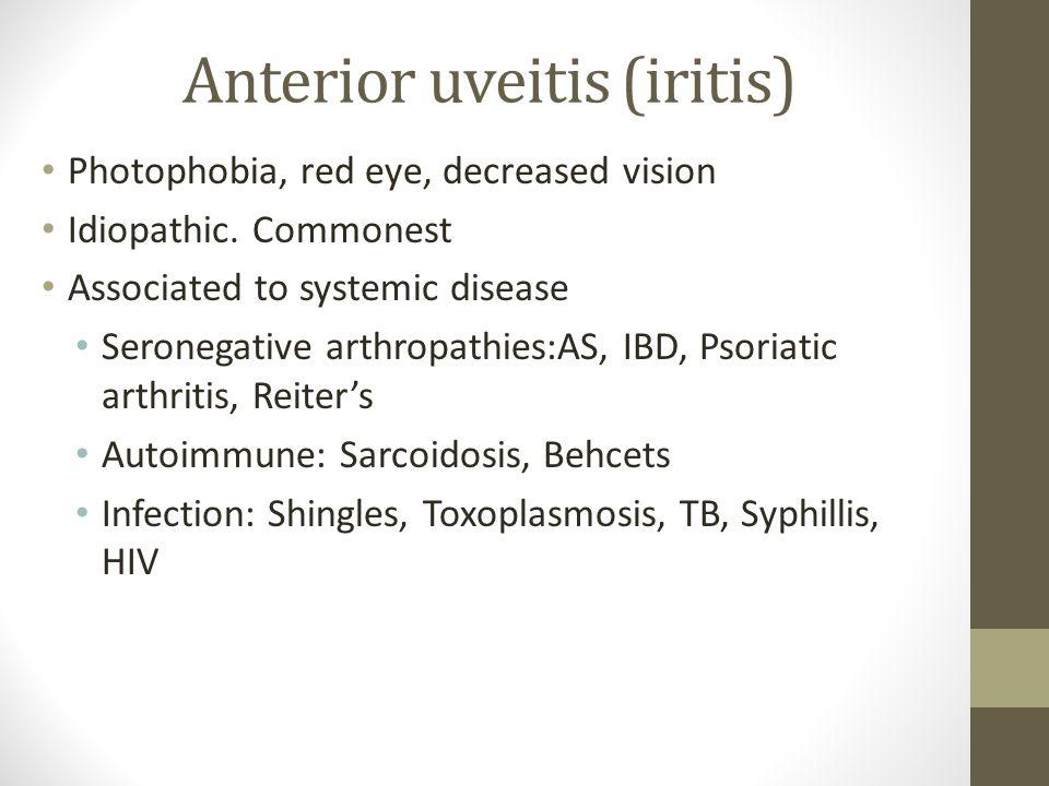 Anterior uveitis (iritis) Photophobia, red eye, decreased vision Idiopathic. Commonest Associated to systemic disease Seronegative arthropathies:AS, I