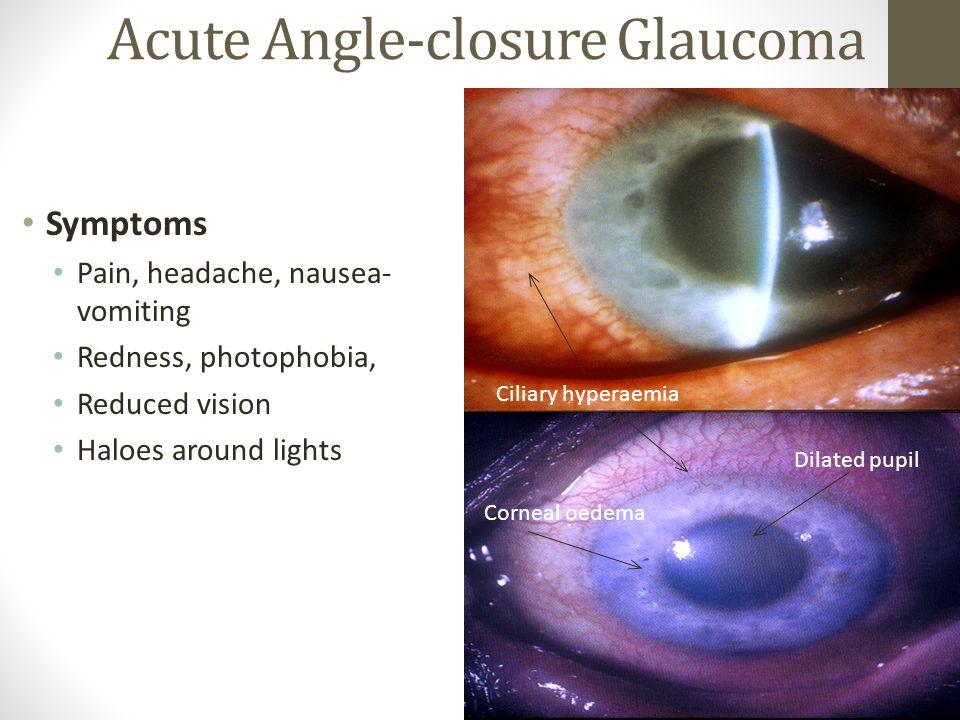 Acute Angle-closure Glaucoma Symptoms Pain, headache, nausea- vomiting Redness, photophobia, Reduced vision Haloes around lights Ciliary hyperaemia Dilated pupil Corneal oedema