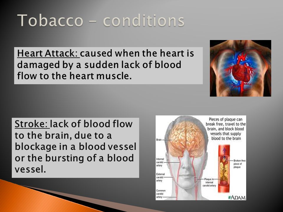 Stroke: lack of blood flow to the brain, due to a blockage in a blood vessel or the bursting of a blood vessel. Heart Attack: caused when the heart is