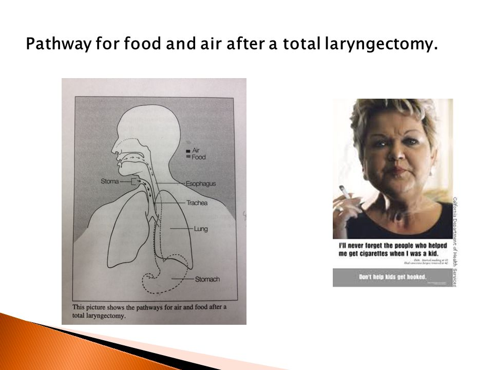 Pathway for food and air after a total laryngectomy.