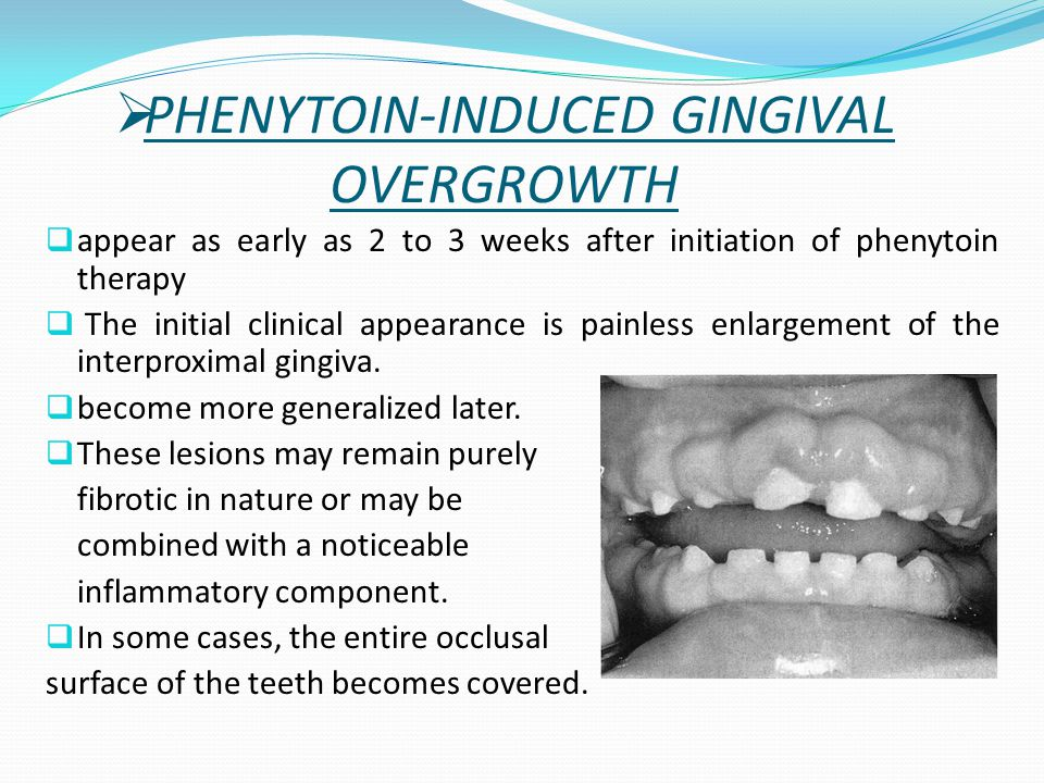  appear as early as 2 to 3 weeks after initiation of phenytoin therapy  The initial clinical appearance is painless enlargement of the interproximal