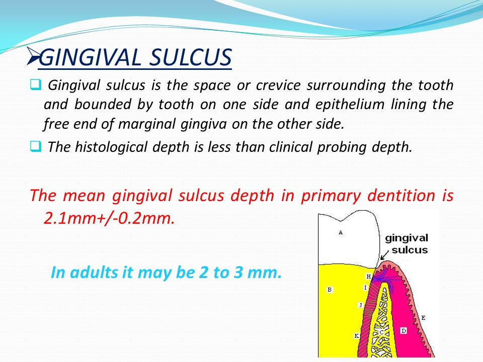  ATTACHED GINGIVA  It is firm, resilient and tightly bound to underlying periosteum of alveolar bone.