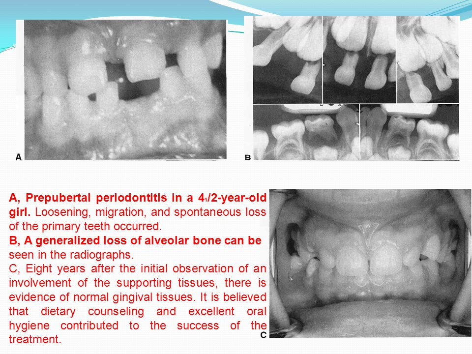 A, Prepubertal periodontitis in a 4 1 /2-year-old girl. Loosening, migration, and spontaneous loss of the primary teeth occurred. B, A generalized los