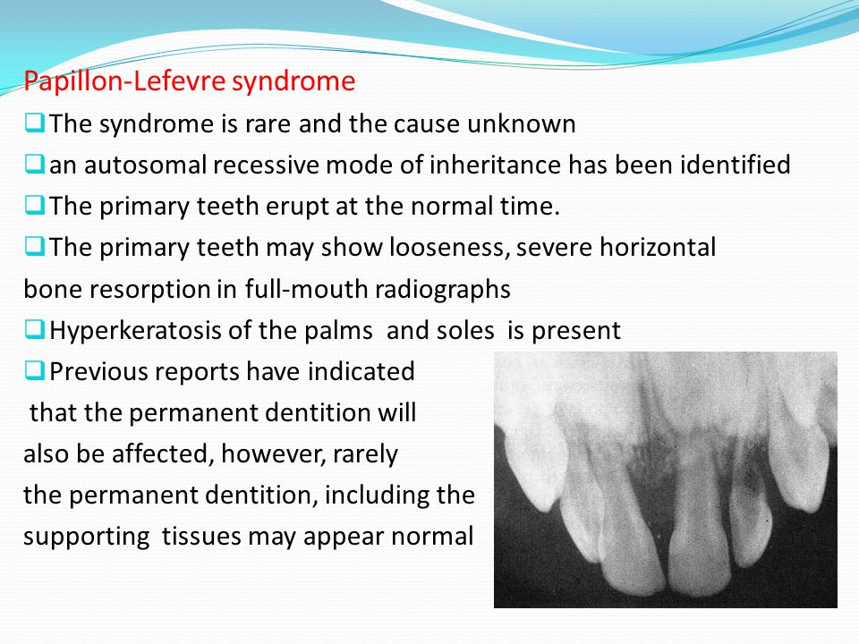 Papillon-Lefevre syndrome  The syndrome is rare and the cause unknown  an autosomal recessive mode of inheritance has been identified  The primary