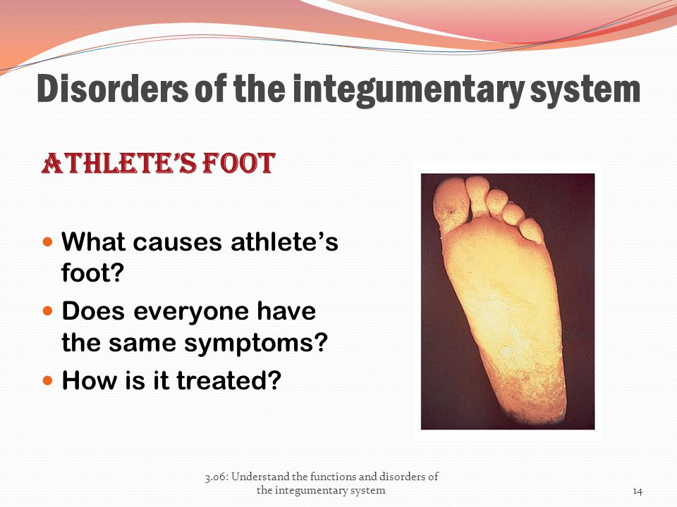 Disorders of the integumentary system Athlete's foot What causes athlete's foot? Does everyone have the same symptoms? How is it treated? 3.06: Unders